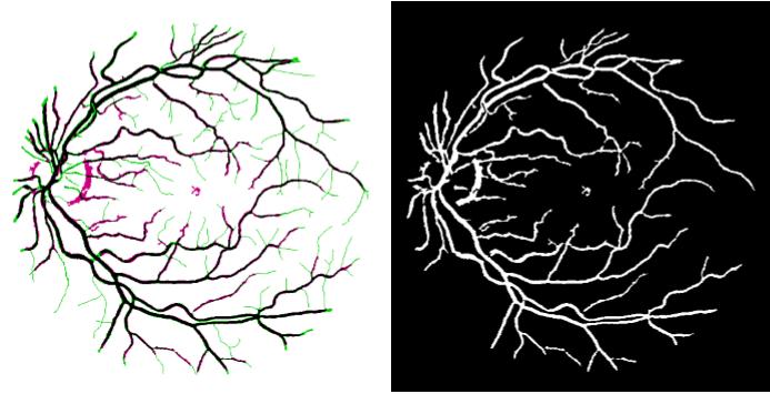 آشکار سازی رگ های خونی شیکیه چشم با روش های در هم تنیدگی تصویر